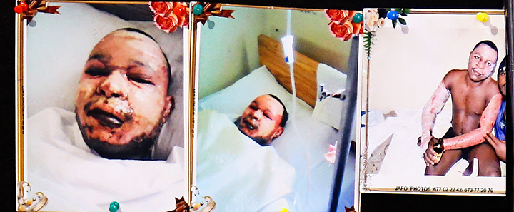 Mr. Mbangsi Emile Suzeh {Severe Fire Burn Injure A.W} (1)